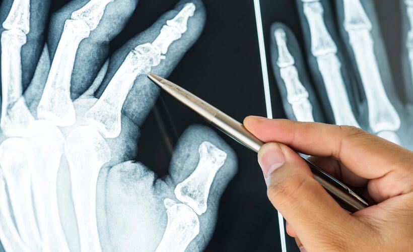 Cirugía reconstructiva y microcirugía de mano Radigrafía Mano