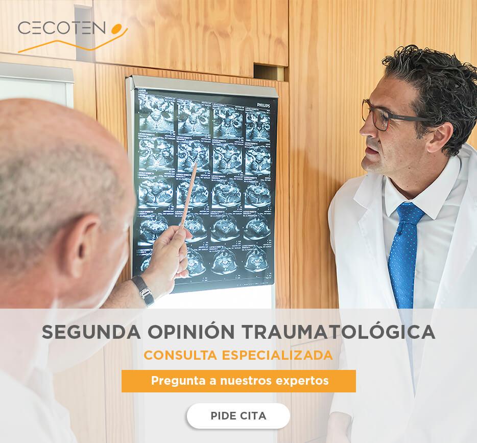 SEGUNDA-OPINIÓN-TRAUMATOLÓGICA